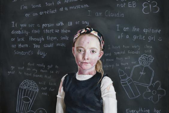 A young girl dressed in blue jeans and a black vest stands in front of a blackboard. She has dressings on her arms and visible under her vest, and we can see a few blisters on her skin. The blackboard behind her is covered in writing, all about the personality of Claudia, the subject of the portrait.