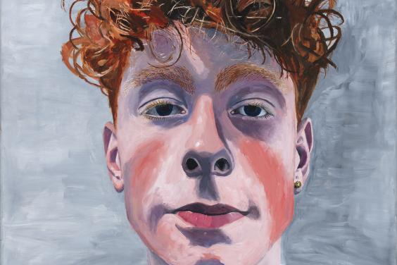 An oil portrait of a young man with red, curly hair. He has red marks on his cheeks, and looks directly at the viewer. The portrait is cropped, so we see his head, and a glimpse of what he is wearing - a white t-shirt and a green hooded top.